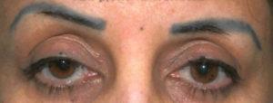 Способы исправления и примеры неудачного татуажа: синие брови